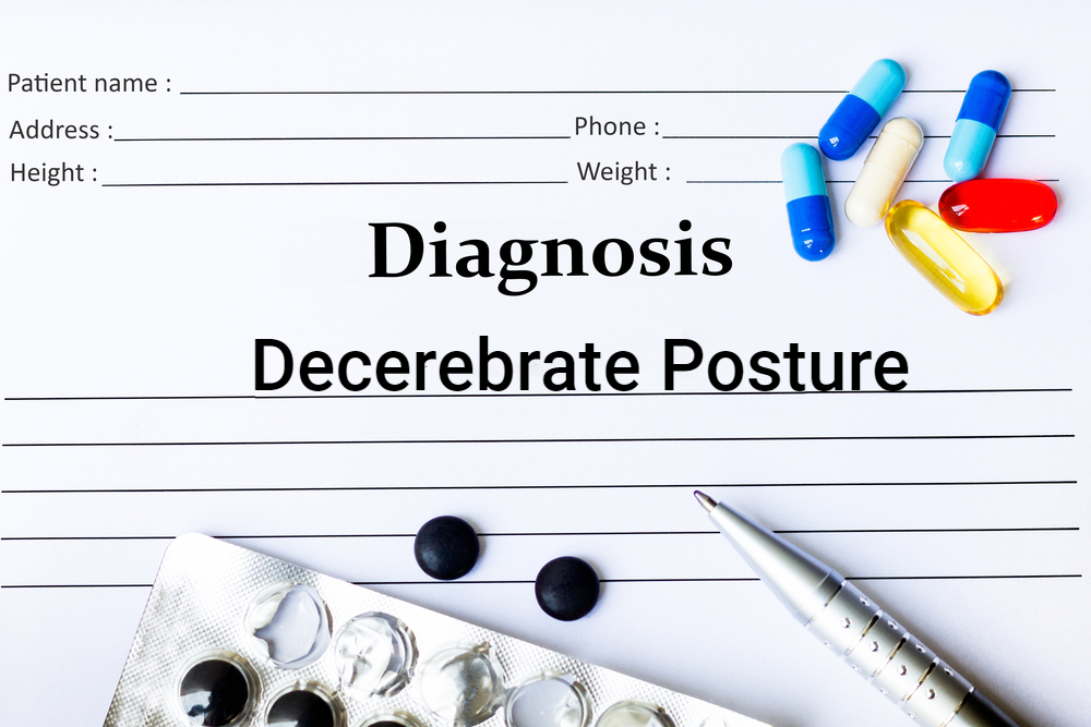 diagnosis chart concept for decerebrate posture