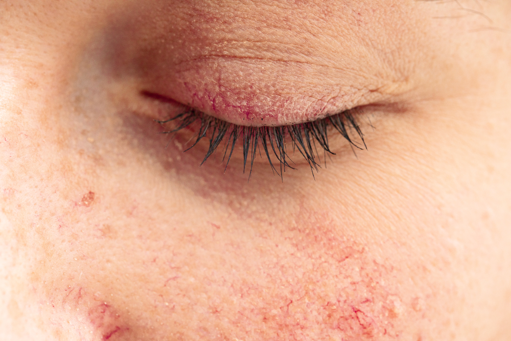 close up of woman with rosacea on her eyelid