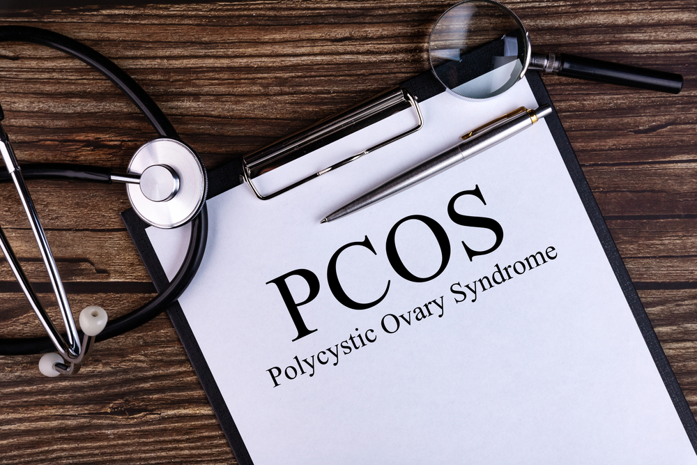 medical concept PCOS with clipboard and stethoscope