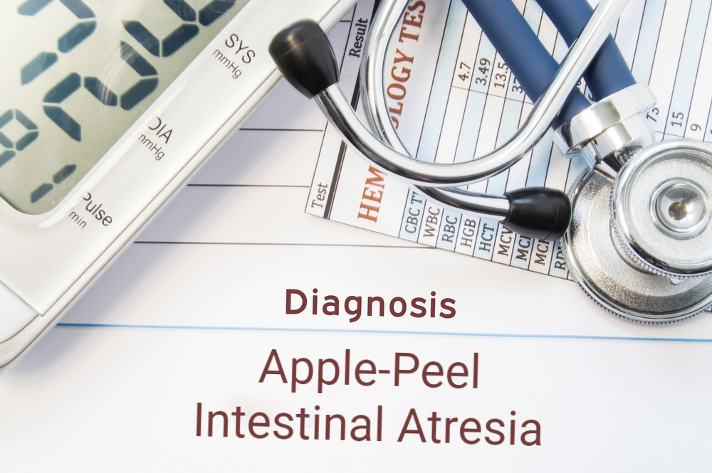 diagnosis concept image with stethoscope for apple-peel intestinal atresia