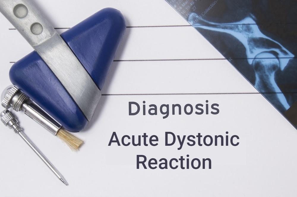 diagnostic chart concept image acute dystonic reaction
