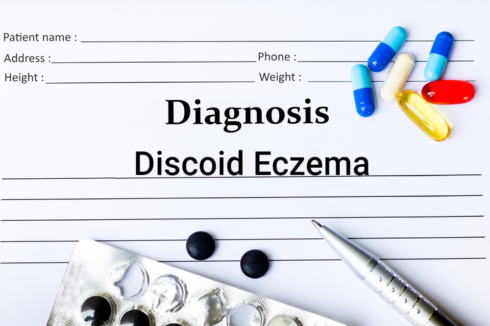 diagnosis medical chart concept for discoid eczema