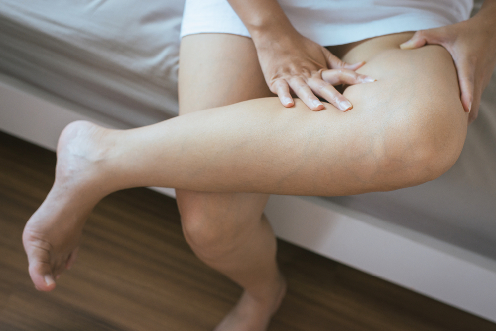 woman holding leg that is swollen and in pain