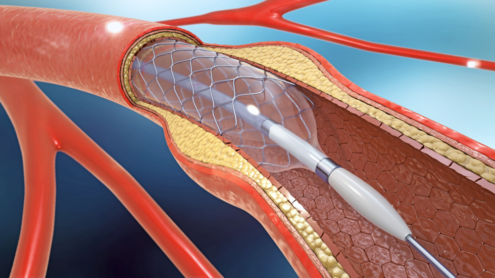 digital illustration of a stent inflated in a vein