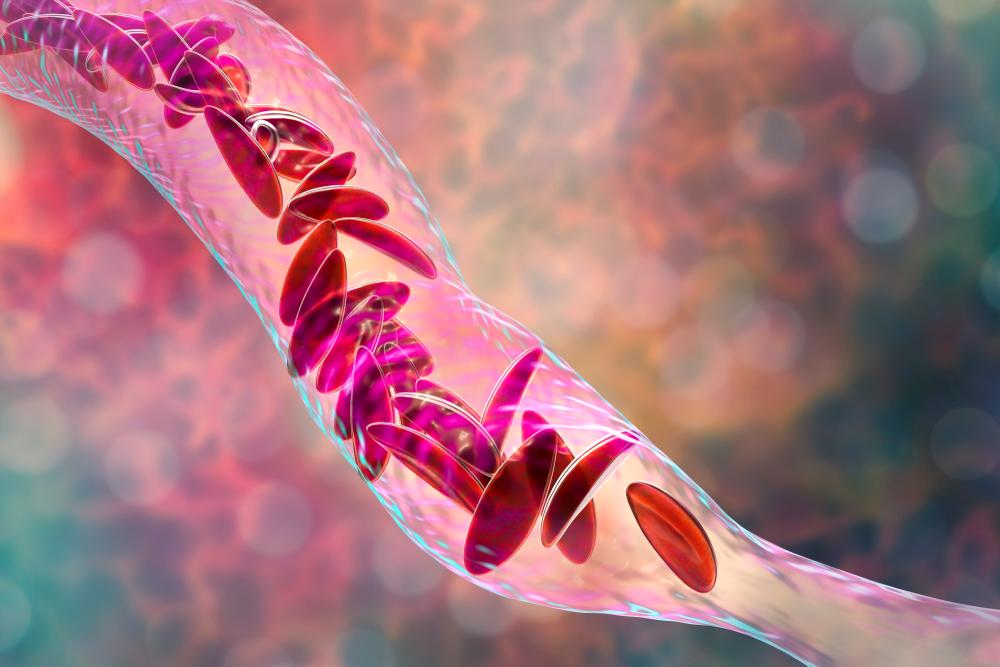 digital illustration of sickle cell disease