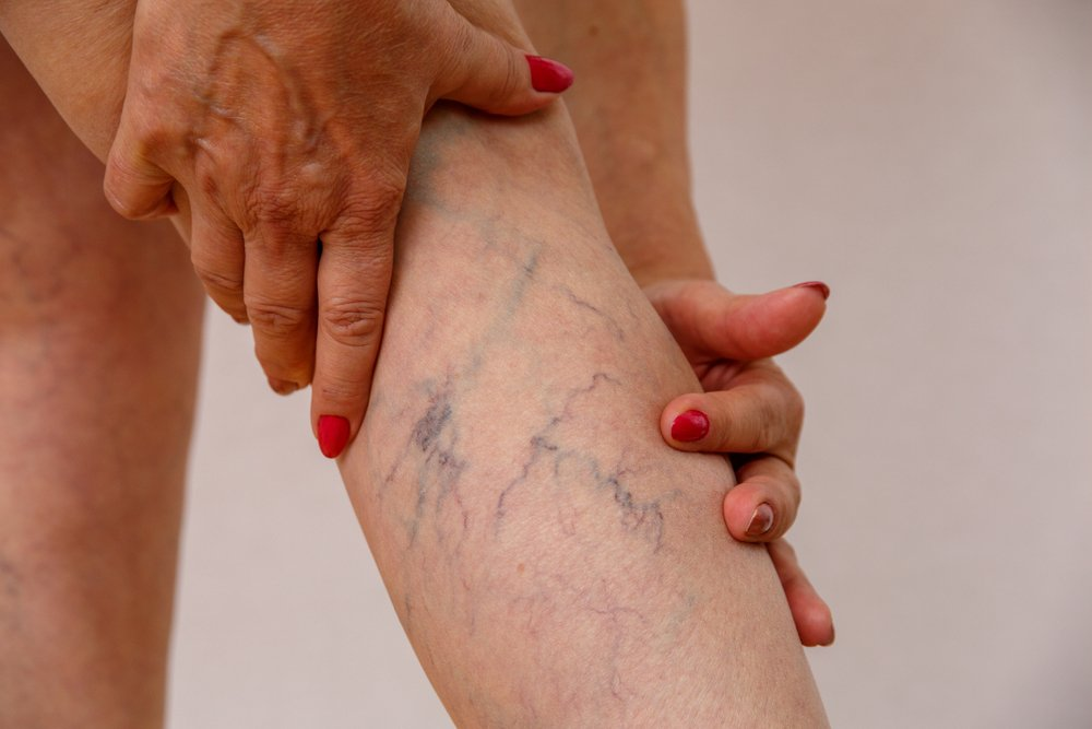 cropped image of varicose veins on woman's calf