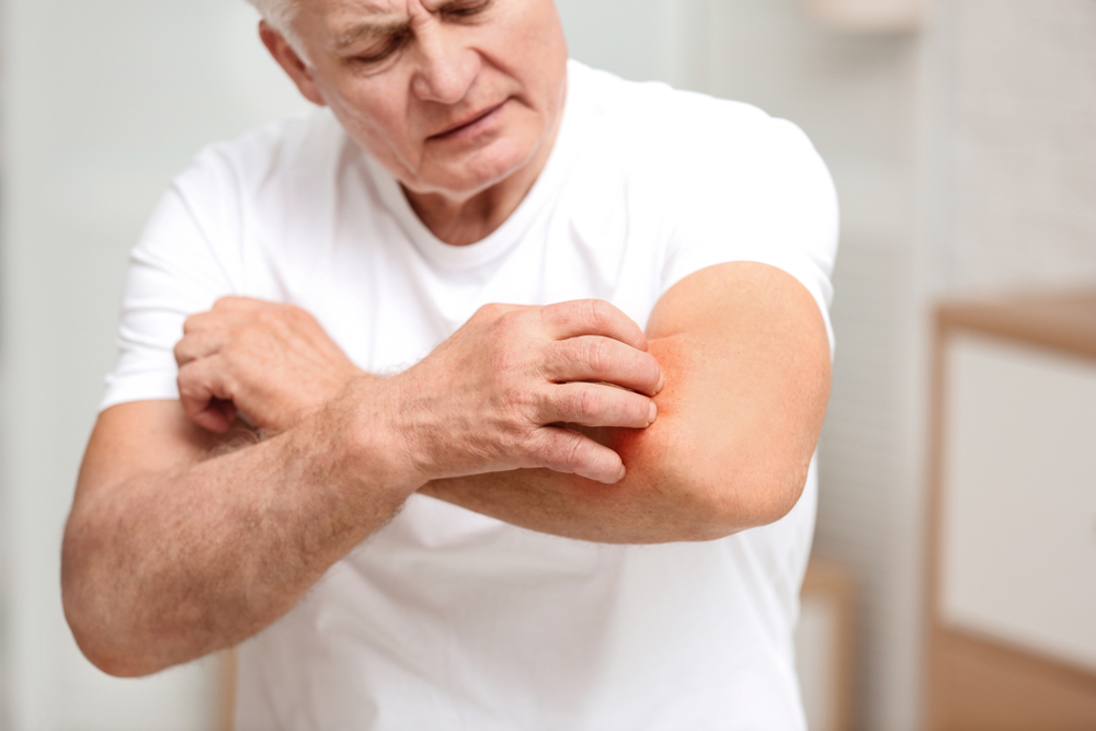 older man scratching a rash on his arm