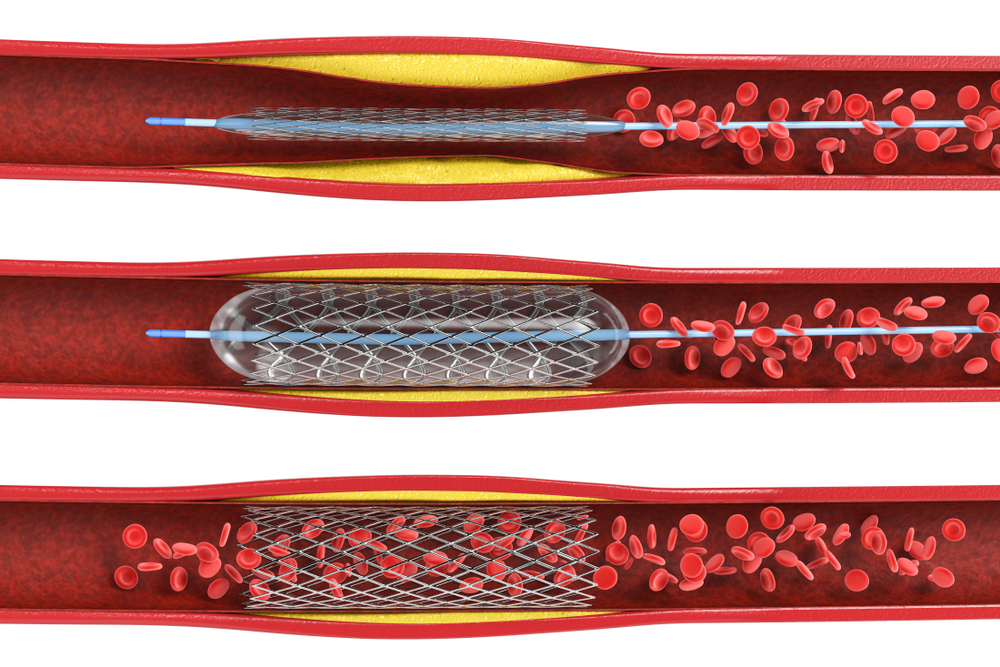 digital illustration of a stent inflated in a vein with buildup