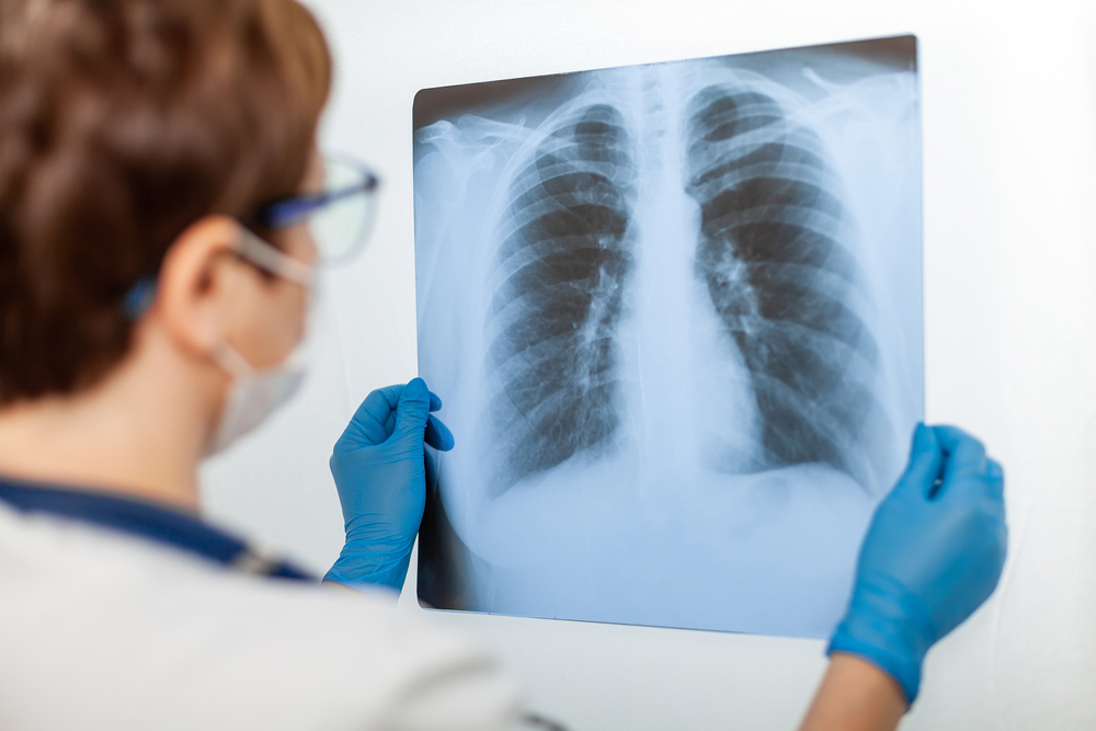 doctor examining a lung x-ray showing infection