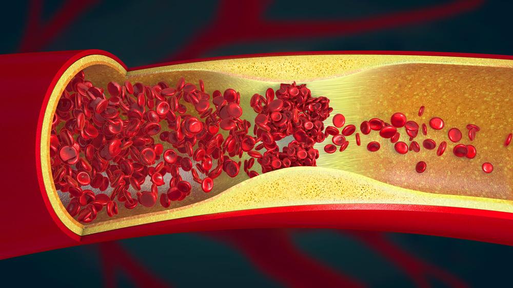 digital illustration of a pulmonary fat embolism