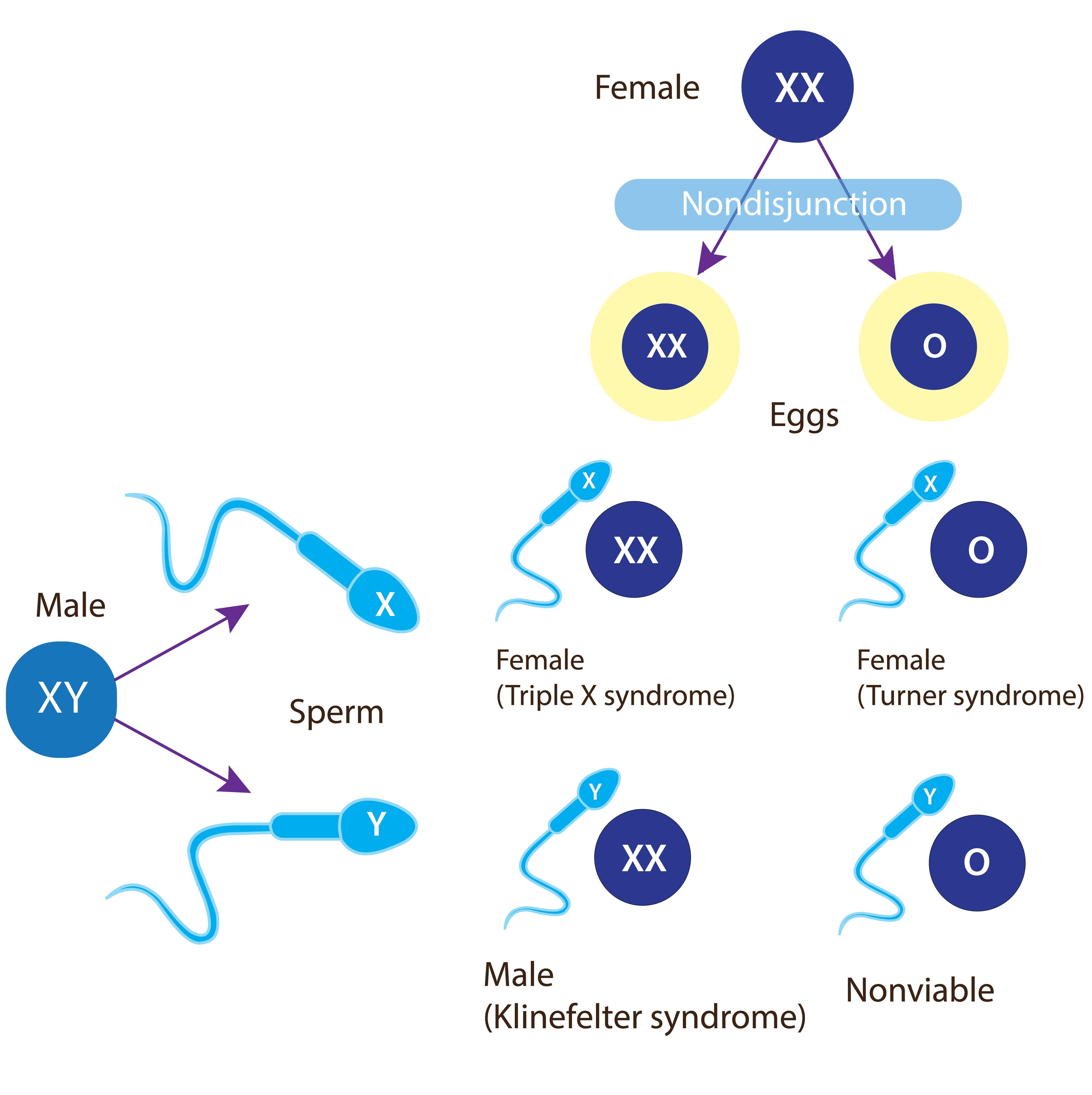 digital illustration of nondisjunction in meiosis