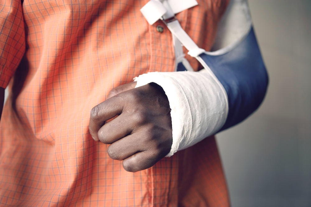 cropped image of a man with a broken arm