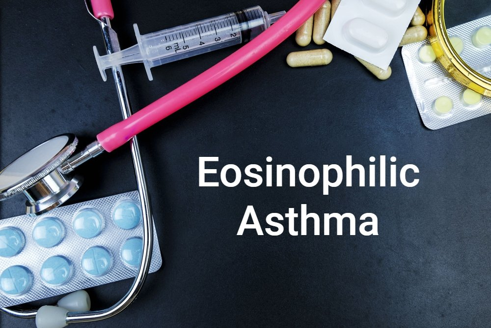 diagnostic concept image for eosinophilic asthma