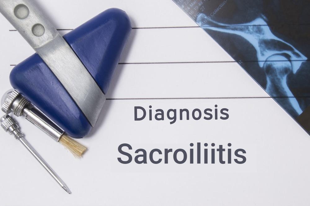 diagnosis concept digital illustration sacroiliitis