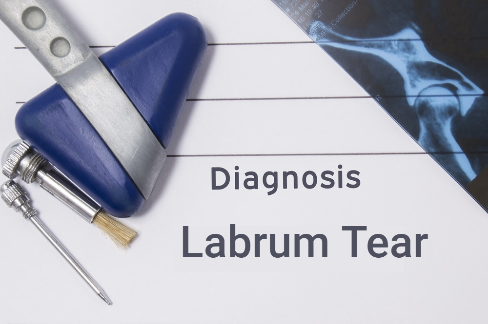 Labrum Tears of the Shoulder and Hip