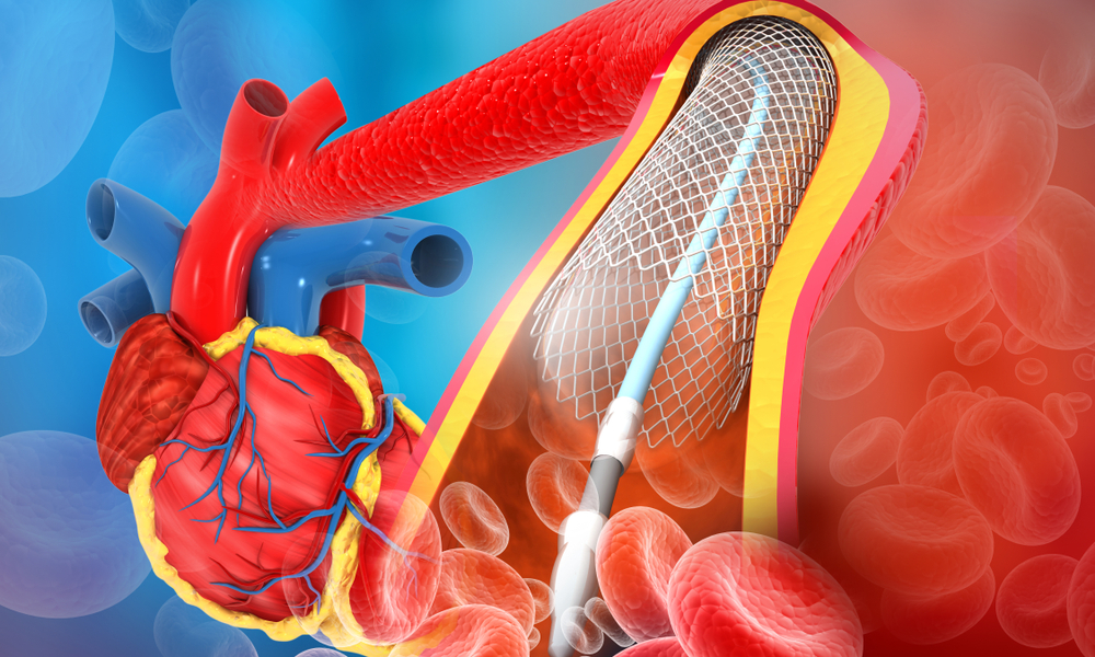 angioplasty digital illustration of balloon and stent in artery