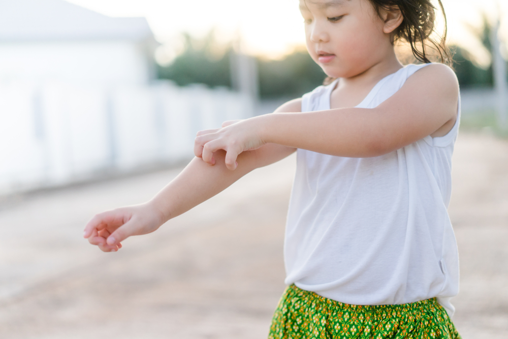 little toddler girl scratching her itchy arm