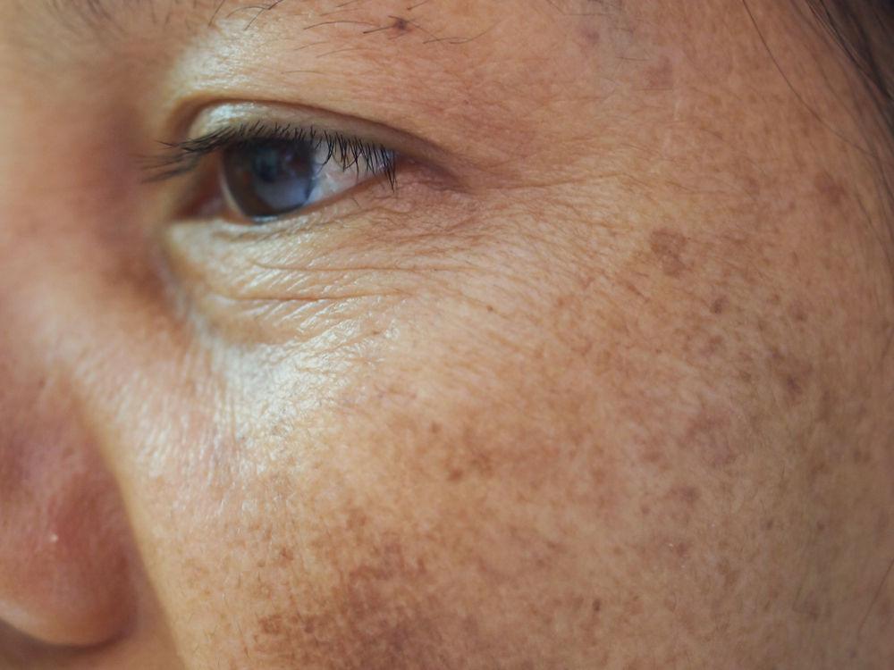 close up of age or sun damage spots on woman's cheek