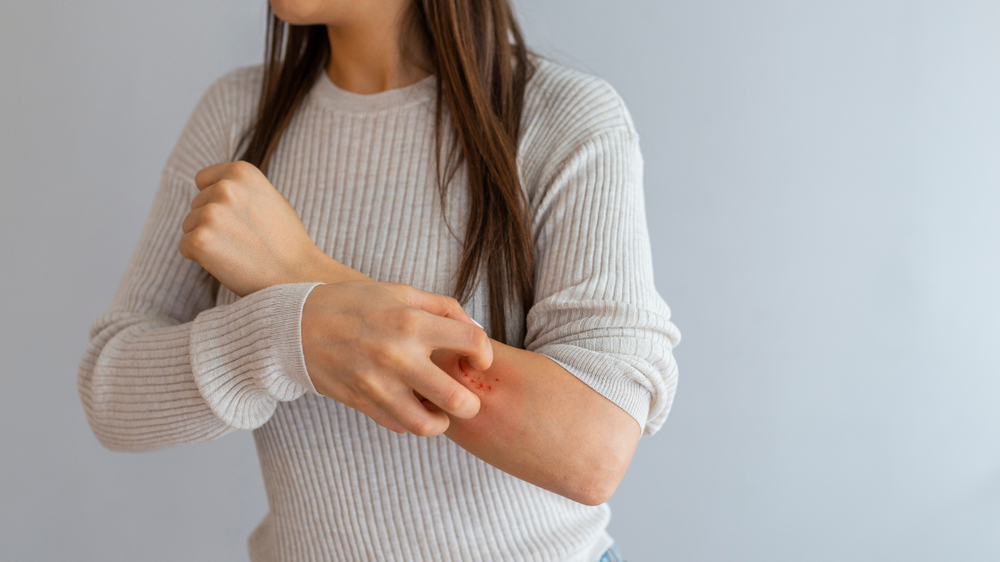woman scratching at hives allergic reaction on her arm