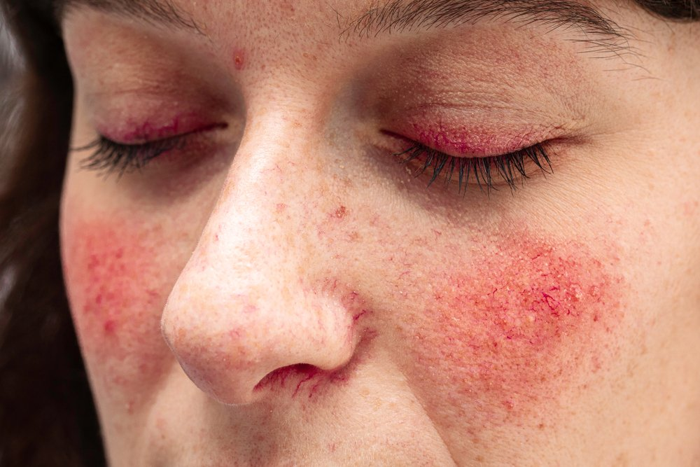 rosacea on a woman's cheeks