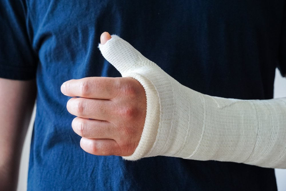 patient with a wrist and arm in a cast