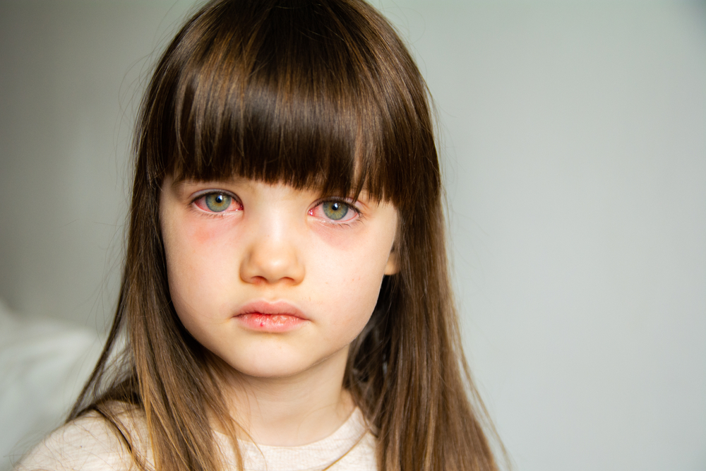 little girl with pink eye or conjunctivitis
