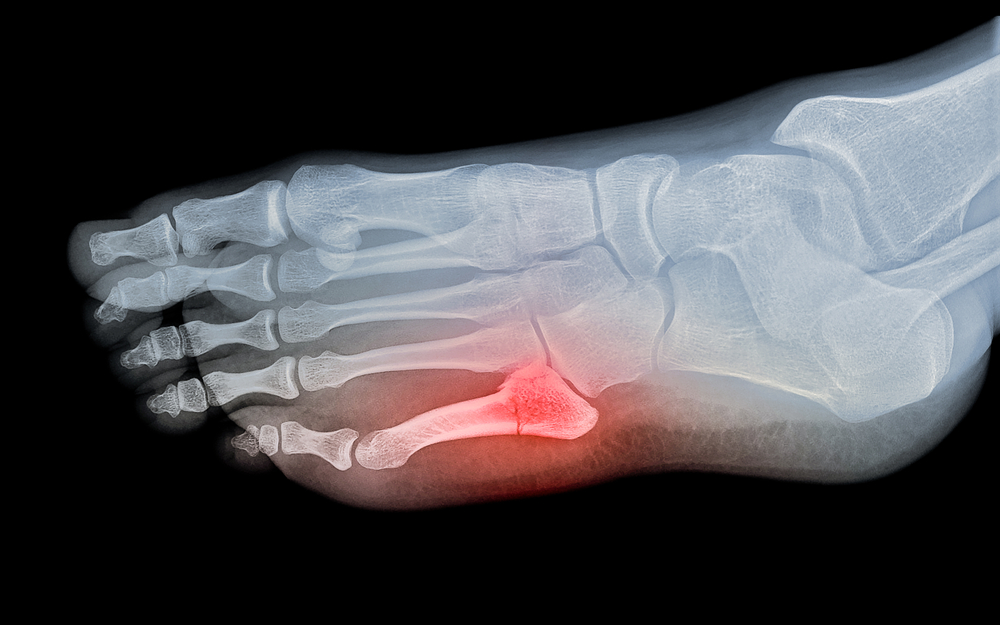 x-ray digital image of a Jones fracture on the foot