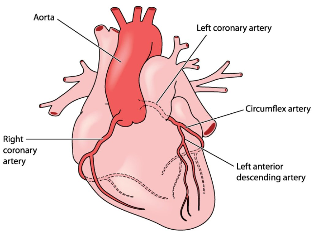 illustration of the heart showing LAD artery
