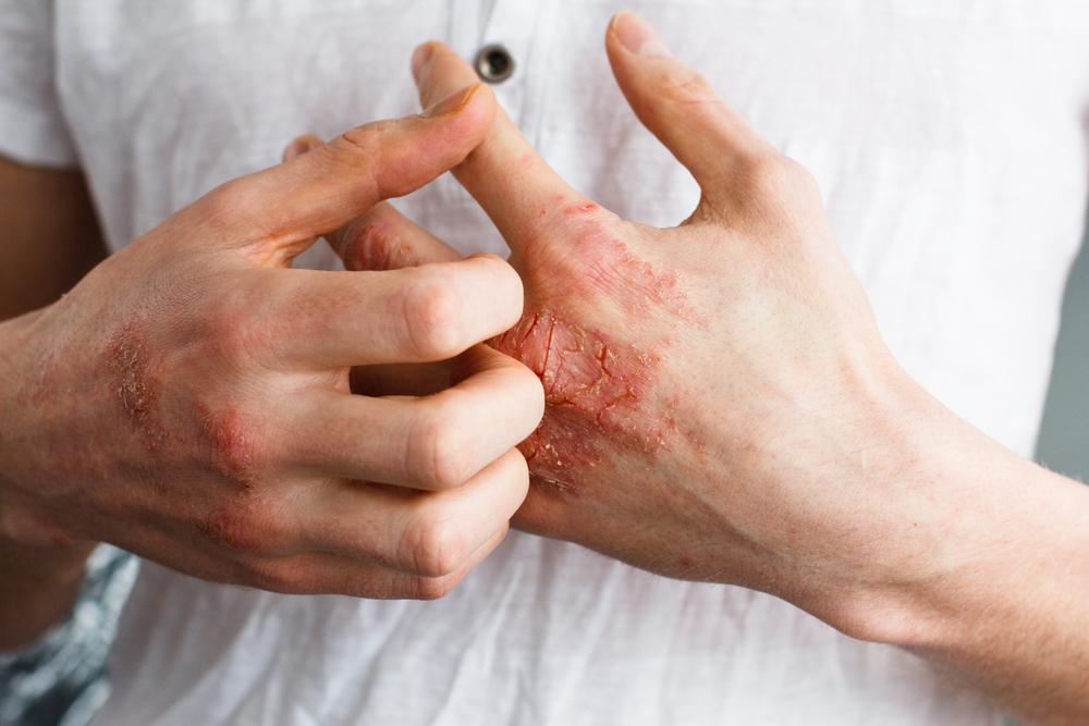 eczema on backs of hands