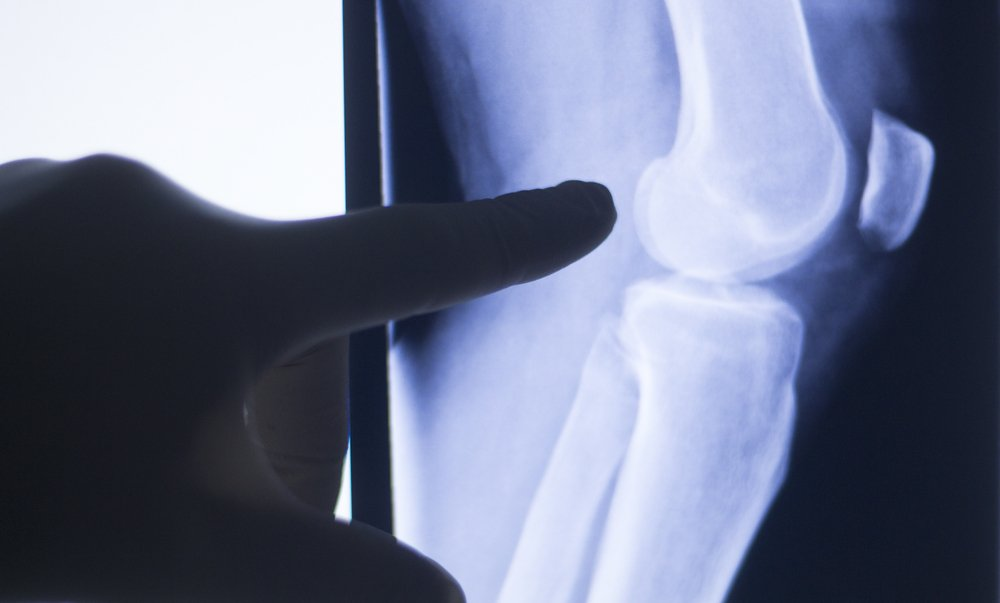 doctor examining an x-ray of a patient's knee with arthritis