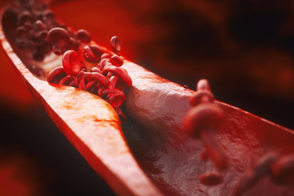 digital illustration of atherosclerosis or hardened arteries