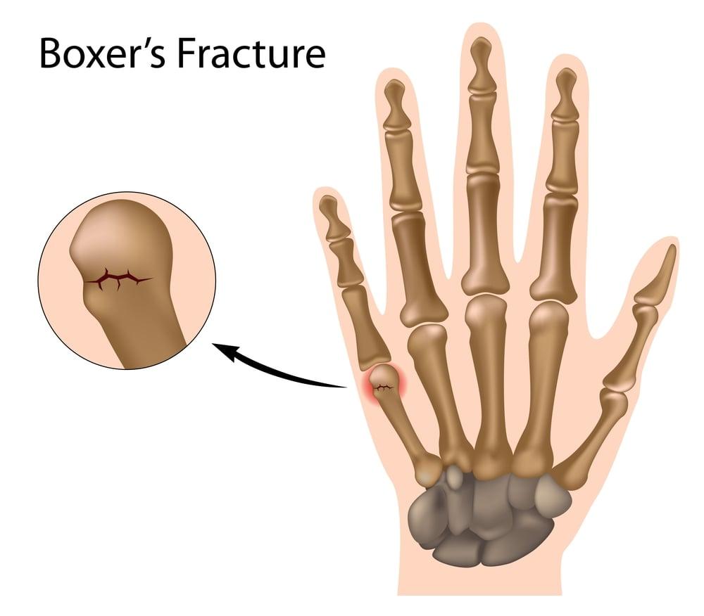 digital illustration of a boxer's fracture
