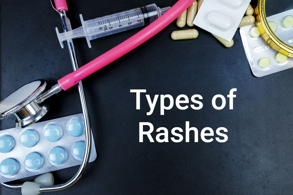 The Most Common Rashes That Affect the Skin